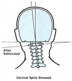 cervical_spine_stressed