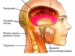Image result for cervicogenic headache