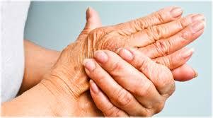 Understanding Arthritis01